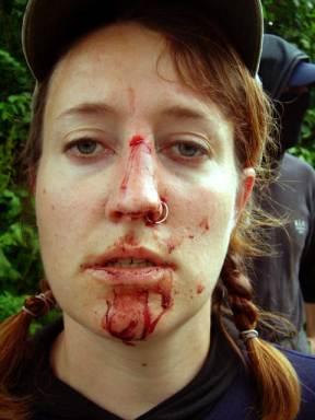 Female hunt saboteur immediately after her nose is broken