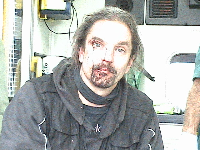 Injured Sab after attack at Southdown & Eridge hunt